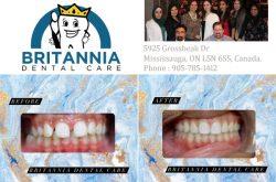 Britannia Dental Care Mississauga